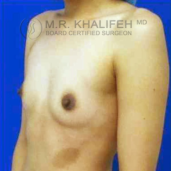 Breast Augmentation Gallery - Patient 3762242 - Image 7