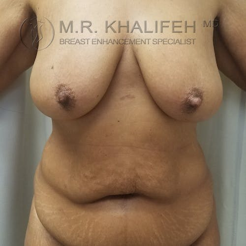 Breast Lift Gallery - Patient 3762246 - Image 1