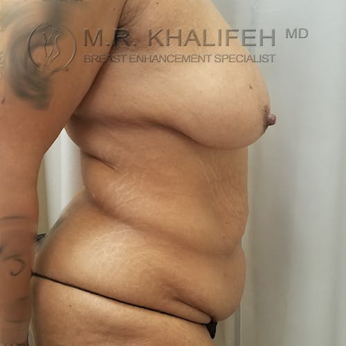 Breast Lift Gallery - Patient 3762246 - Image 3