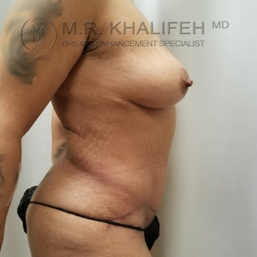Breast Lift Gallery - Patient 3762246 - Image 4