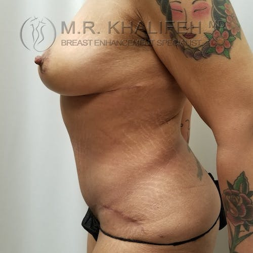 Breast Lift Gallery - Patient 3762246 - Image 6