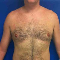 Male Liposuction Gallery - Patient 3762250 - Image 1
