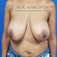 Breast Lift Gallery - Patient 3762251 - Image 1