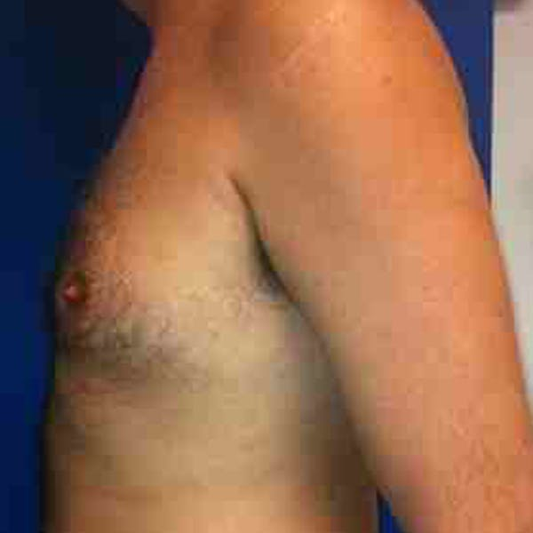 Male Liposuction Gallery - Patient 3762250 - Image 3
