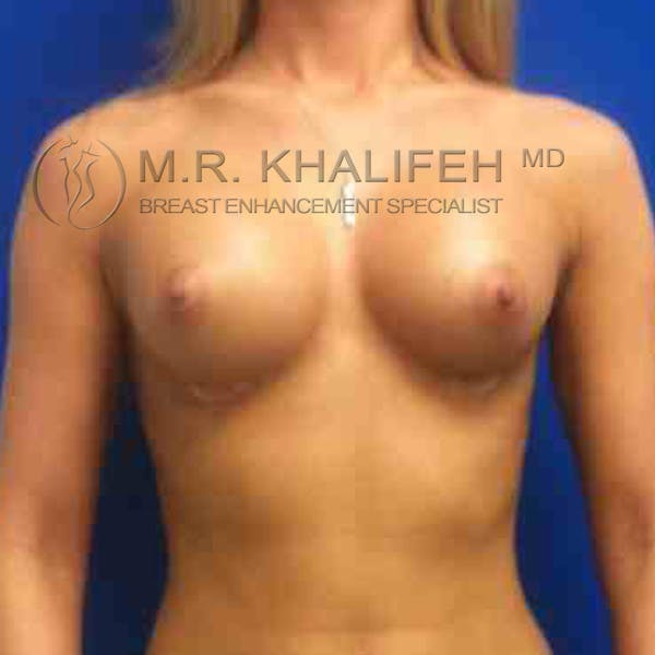 Breast Augmentation Gallery - Patient 3762248 - Image 6