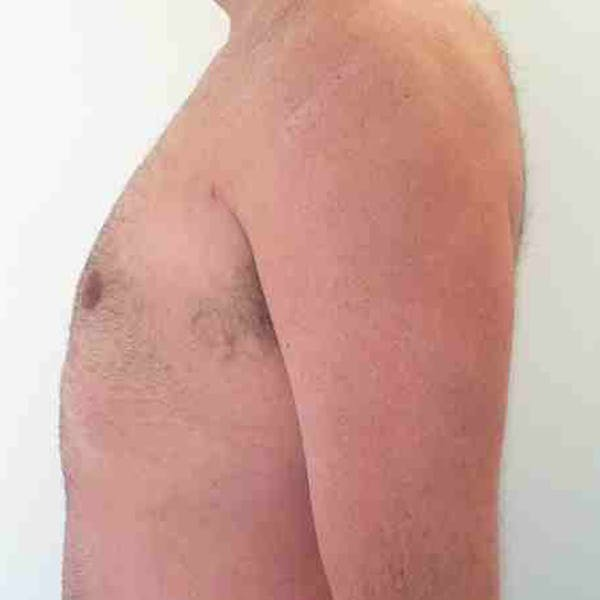 Male Liposuction Gallery - Patient 3762250 - Image 4