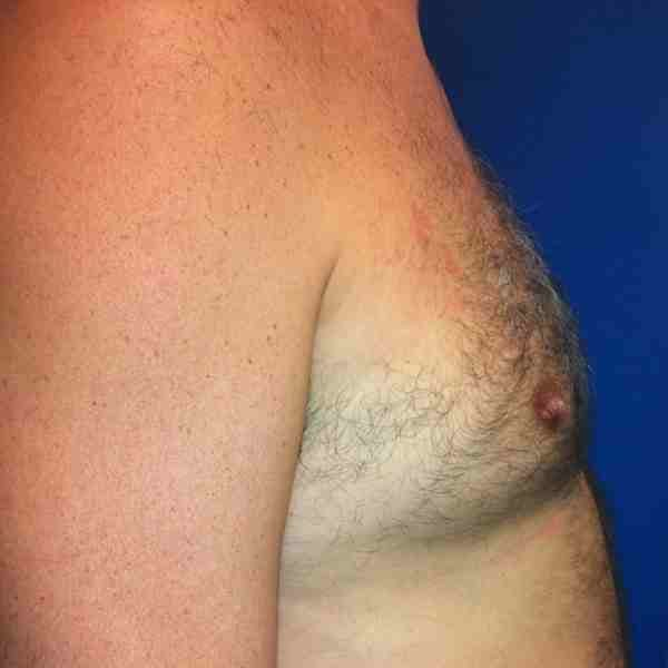 Male Liposuction Gallery - Patient 3762250 - Image 5