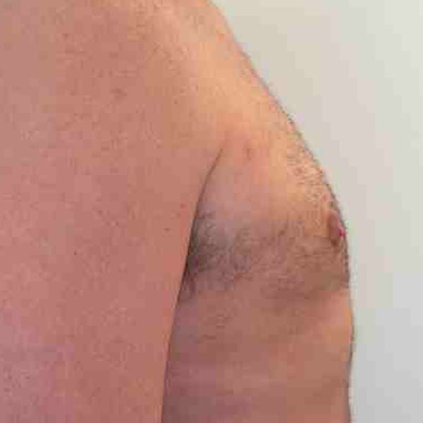 Male Liposuction Gallery - Patient 3762250 - Image 6