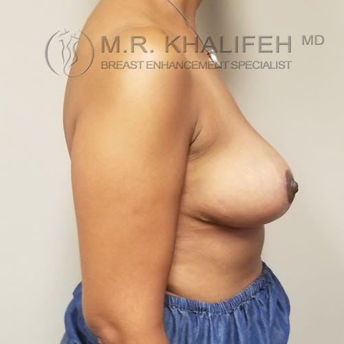 Breast Lift Gallery - Patient 3762251 - Image 6