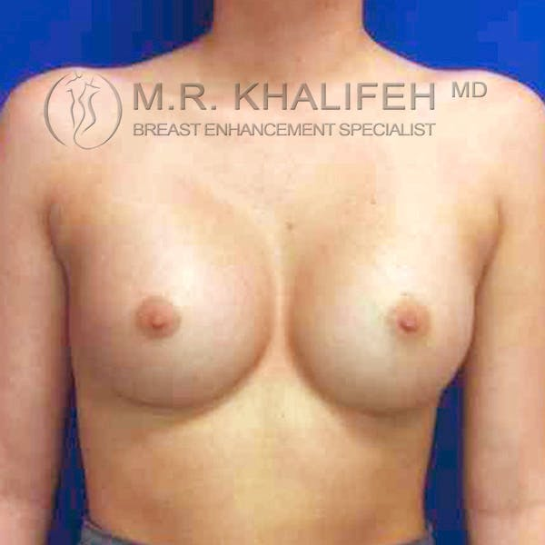 Breast Augmentation Gallery - Patient 3762263 - Image 2