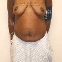 Tummy Tuck Gallery - Patient 3762259 - Image 1
