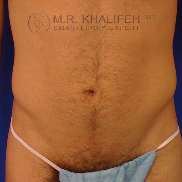 Male Liposuction Gallery - Patient 3762268 - Image 1
