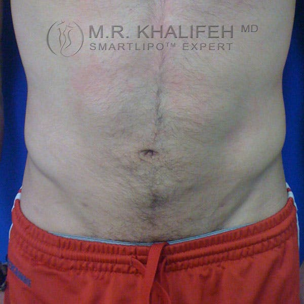 Male Liposuction Gallery - Patient 3762268 - Image 2