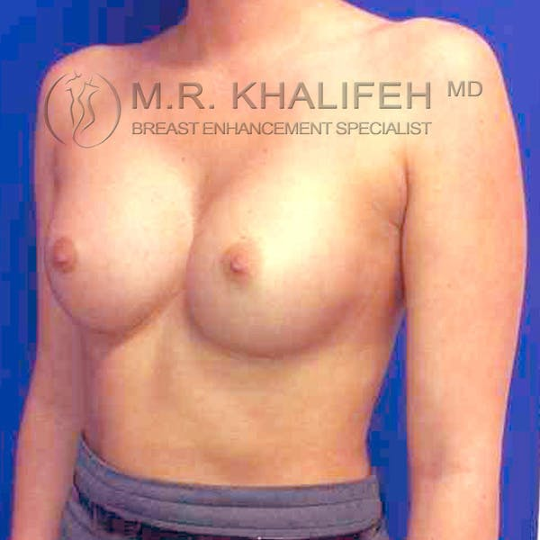 Breast Augmentation Gallery - Patient 3762263 - Image 4