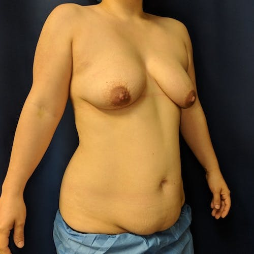 Breast Lift Gallery - Patient 3762269 - Image 3