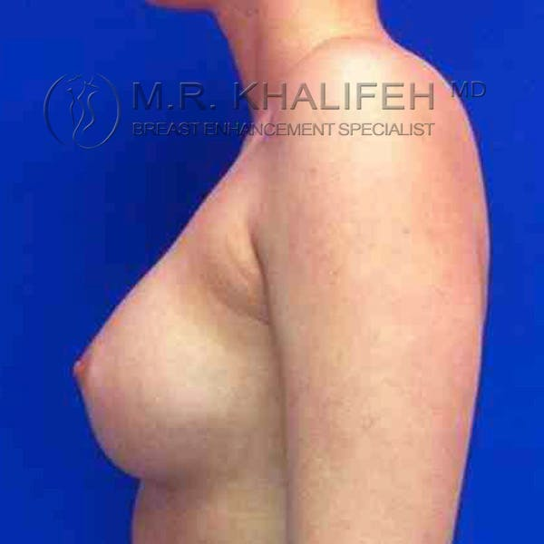 Breast Augmentation Gallery - Patient 3762263 - Image 6