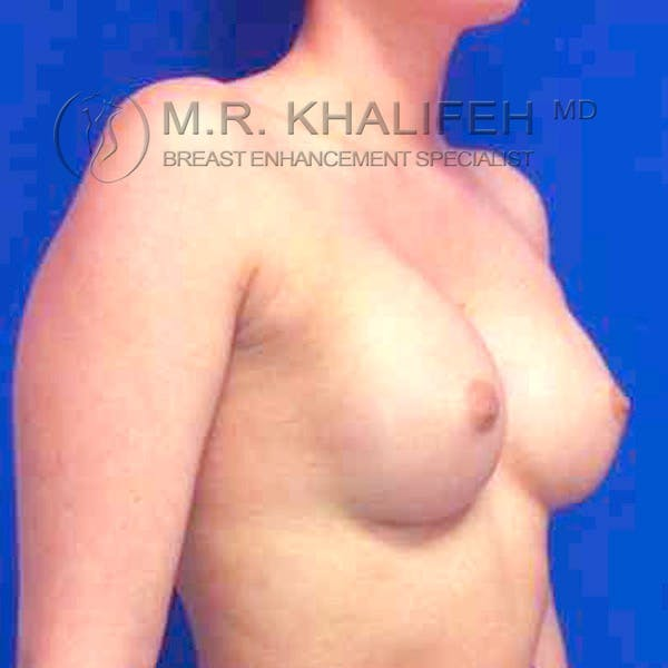 Breast Augmentation Gallery - Patient 3762263 - Image 8