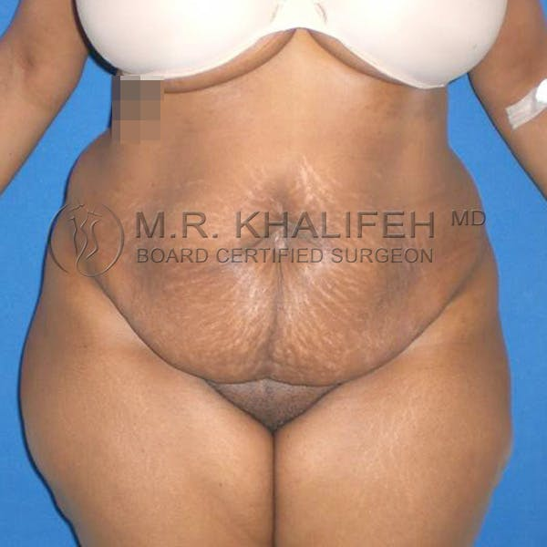 Tummy Tuck Gallery - Patient 3762275 - Image 1