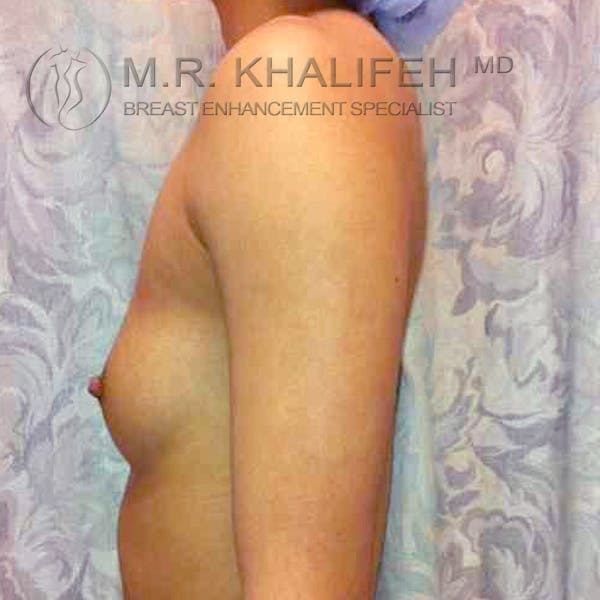Breast Augmentation Gallery - Patient 3762287 - Image 1