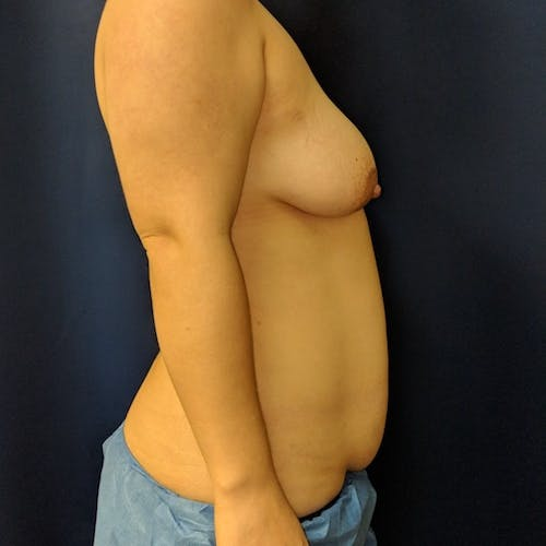 Breast Lift Gallery - Patient 3762269 - Image 9