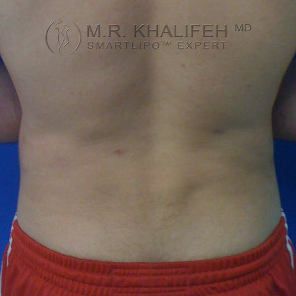 Male Liposuction Gallery - Patient 3762268 - Image 8