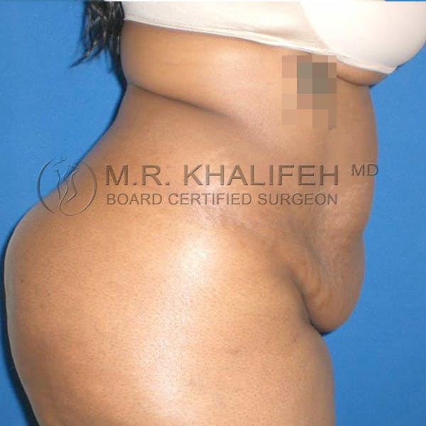 Tummy Tuck Gallery - Patient 3762275 - Image 3