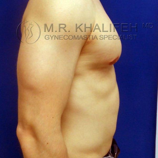 Gynecomastia Gallery - Patient 3762286 - Image 6