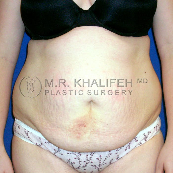 Tummy Tuck Gallery - Patient 3762298 - Image 1