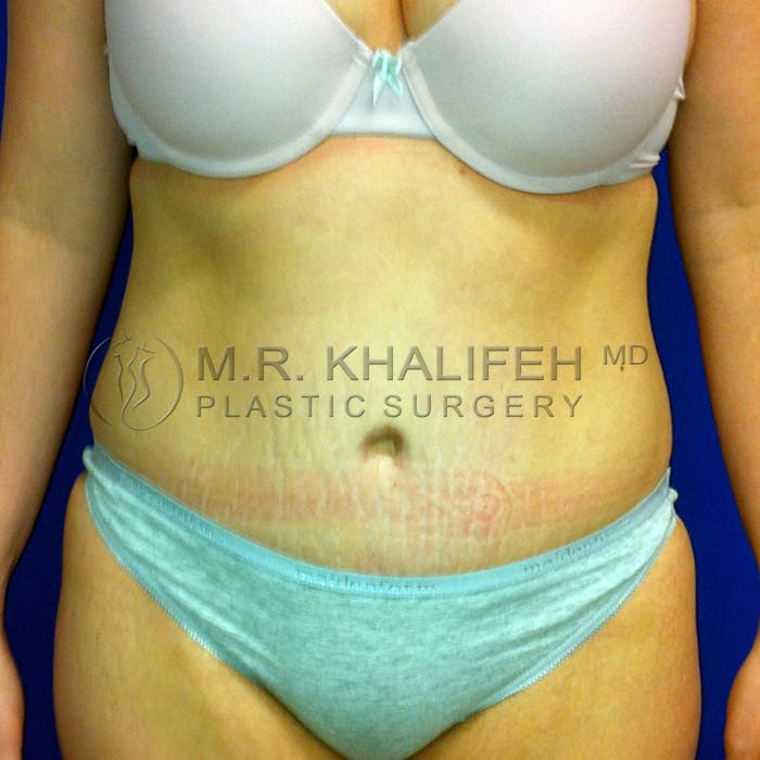 Tummy Tuck Gallery - Patient 3762298 - Image 2