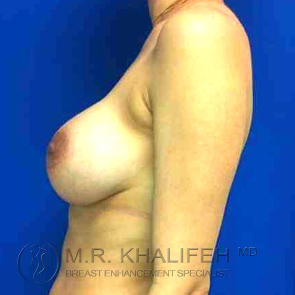 Breast Augmentation Gallery - Patient 3762304 - Image 2