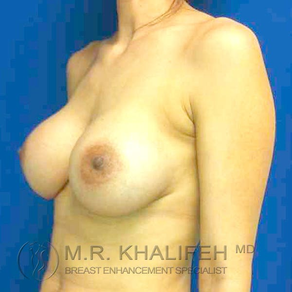 Breast Augmentation Gallery - Patient 3762304 - Image 4