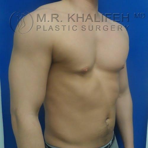 Gynecomastia Gallery - Patient 3762307 - Image 7