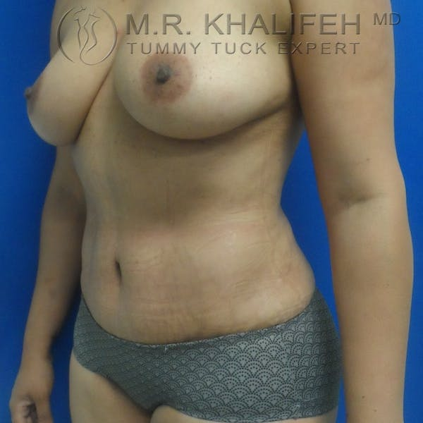 Tummy Tuck Gallery - Patient 3762325 - Image 4