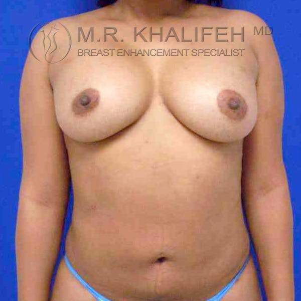 Breast Augmentation Gallery - Patient 3762316 - Image 2