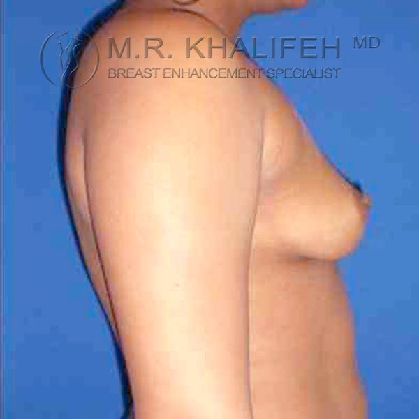 Breast Augmentation Gallery - Patient 3762316 - Image 3