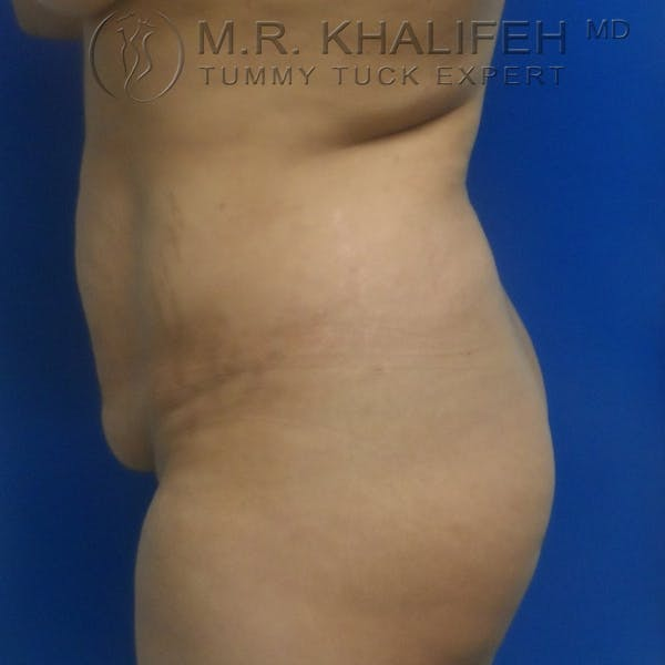 Tummy Tuck Gallery - Patient 3762325 - Image 5