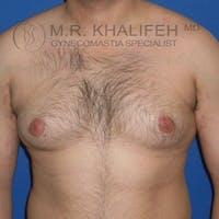 Gynecomastia Gallery - Patient 3762335 - Image 1