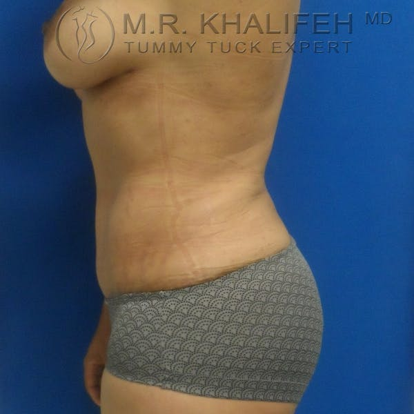 Tummy Tuck Gallery - Patient 3762325 - Image 6