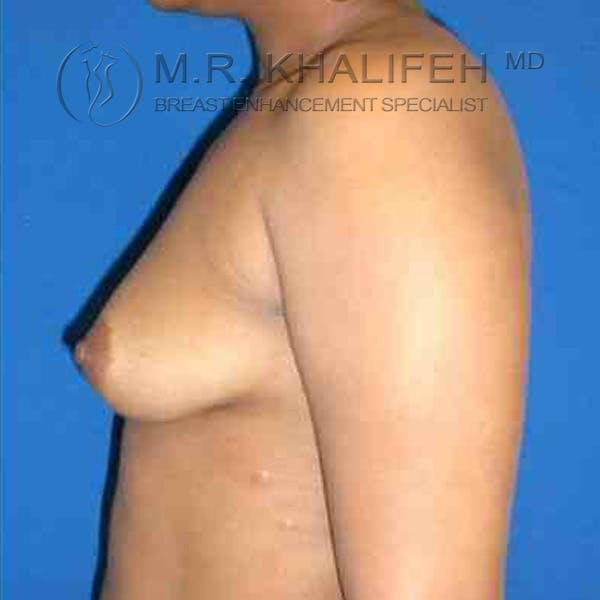 Breast Augmentation Gallery - Patient 3762316 - Image 5