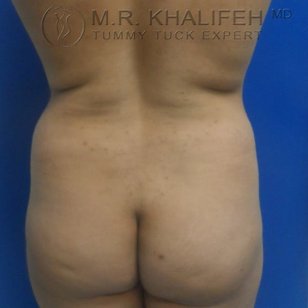 Tummy Tuck Gallery - Patient 3762325 - Image 7
