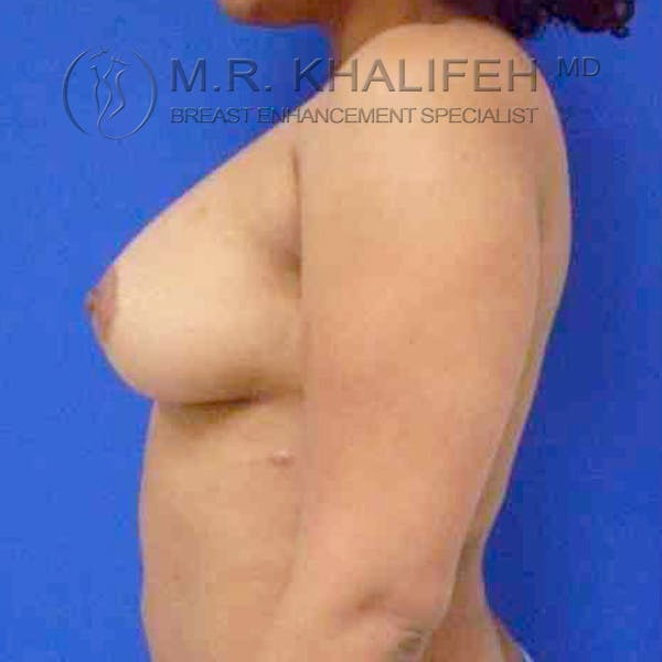 Breast Augmentation Gallery - Patient 3762316 - Image 6