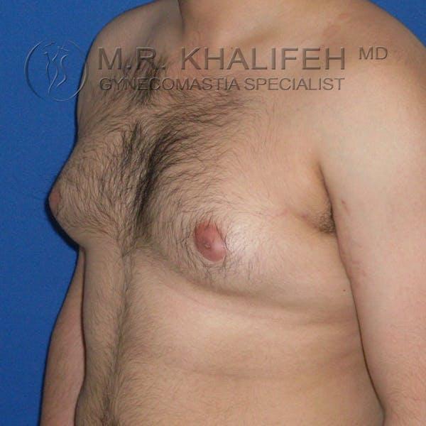 Gynecomastia Gallery - Patient 3762335 - Image 3