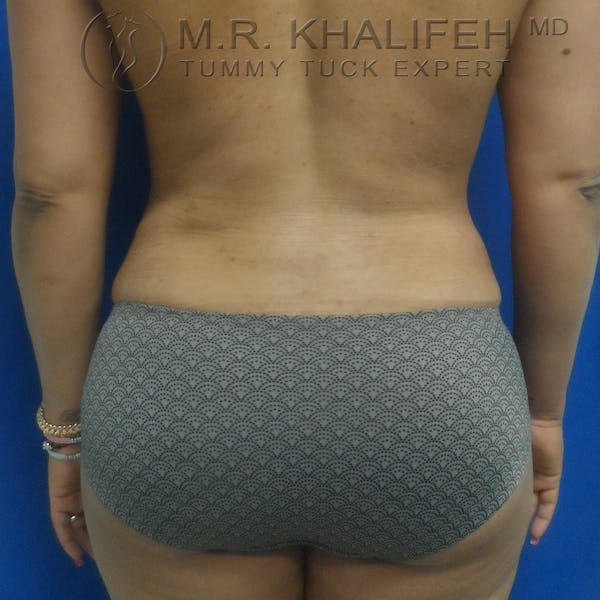 Tummy Tuck Gallery - Patient 3762325 - Image 8