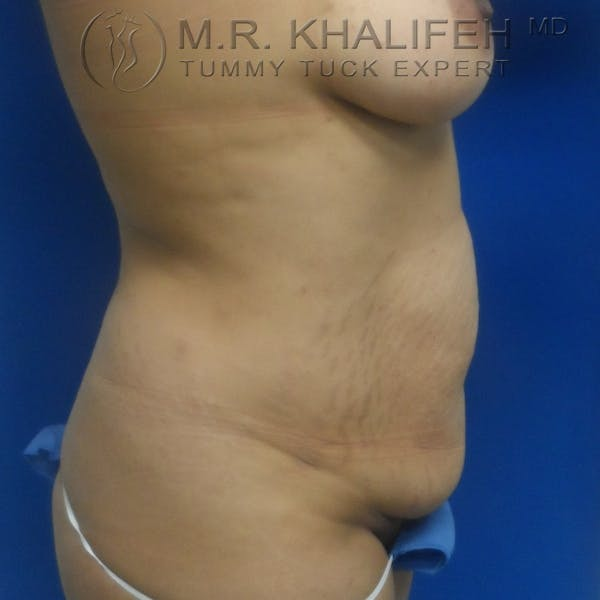 Tummy Tuck Gallery - Patient 3762325 - Image 9