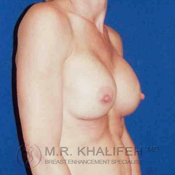 Breast Augmentation Gallery - Patient 3762331 - Image 2