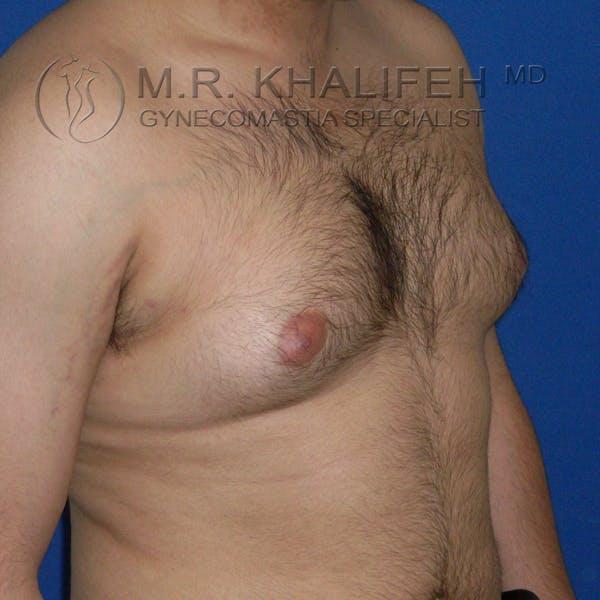Gynecomastia Gallery - Patient 3762335 - Image 7