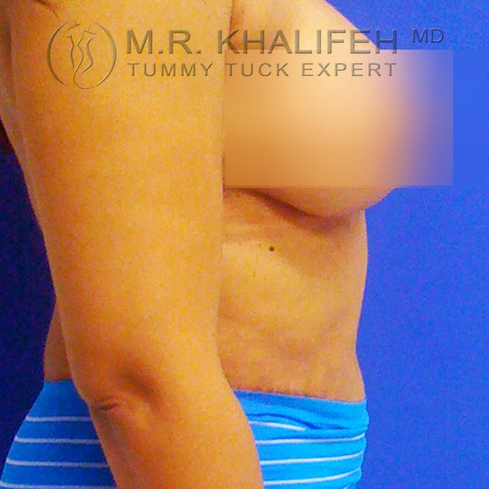 Tummy Tuck Gallery - Patient 3762344 - Image 4
