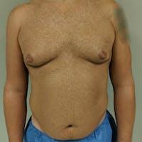 Gynecomastia Gallery - Patient 3762347 - Image 1