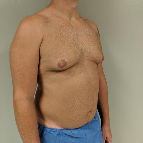 Gynecomastia Gallery - Patient 3762347 - Image 3