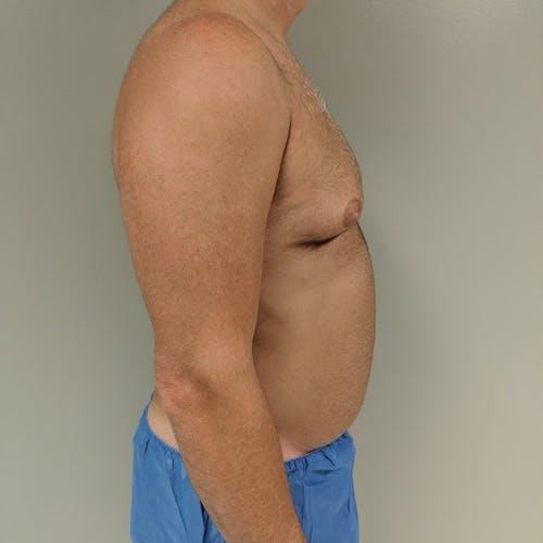 Gynecomastia Gallery - Patient 3762347 - Image 5